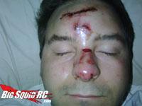 marshal injury
